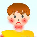 その皮膚のかゆみや湿疹の症状は肝臓が原因かも?かゆみの対処法7選とは!