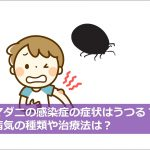 ダニ感染症の症状と予防!もしもマダニ類に咬まれたときの対処法は!!