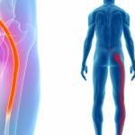 坐骨神経痛の痛みを解消する3つの簡単にできる運動とは?