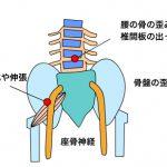 腰痛で脊柱管狭窄症の症状とは?歩行困難やしびれが悪化したら手術も検討!