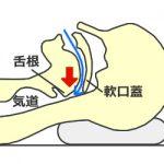 いびきの原因といびきが引き起こす恐い病気!普段からできる7つの解消法!!