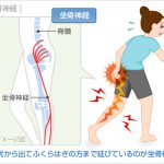 腰痛で脊柱管狭窄症!歩行困難やしびれが悪化したら手術も検討!!