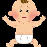 赤ちゃんのアトピー?1才でも卵と小麦にアレルギーが出た?