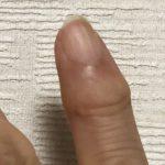 手指の関節が痛い!その症状は自力では治りません!原因と対処法とは!