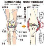 膝痛を改善する日常生活で簡単にできる7つのコツとは!